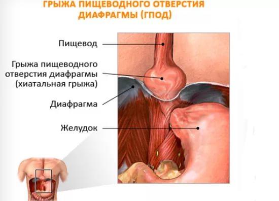 Как лечить грыжу пищеводного отверстия диафрагмы