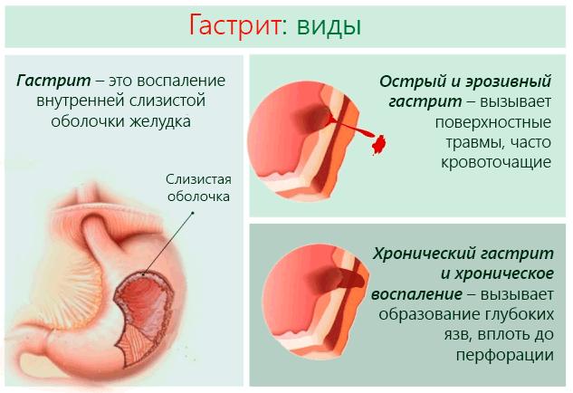 цитомегаловирус лечение детей отзывы