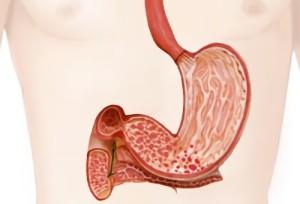 Обострение гастродуоденита